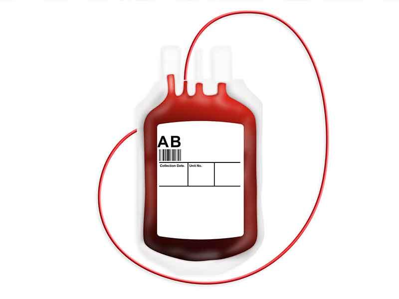軟質塩ビのための混練システム - 実例として血液バッグのアプリケーション